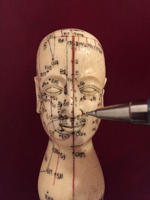 akupunktūra,akupunktūros taškai,acupuncturist,medicina,stimuliavimas,kūnas,alternatyva,taškai,gijimas