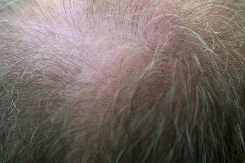 suaugęs,nuplikęs,balding,karūna,tėtis,senyvo amžiaus,folikulą,džentelmenas,grand,senelis,senelis,senelis,senelis,pilka,pilka,Suaugęs,Suaugęs,plaukai,Plaukų slinkimas,praradimas,Patinas,vyras,senas,vyresni,tėvas,tėvų,pleistras,žmonės,asmuo,vyresnysis,vieta