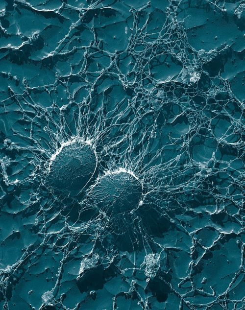 bakterijos,kokiai,stafilokokai,Staphylococcus,patogenai,liga,elektronų mikroskopija,elektronų mikrografas,mokslas,didinimas,infekcija,užkrėsti,užkrėstas,rizika,užkrečiama,infekcijos rizika,skiepijimas