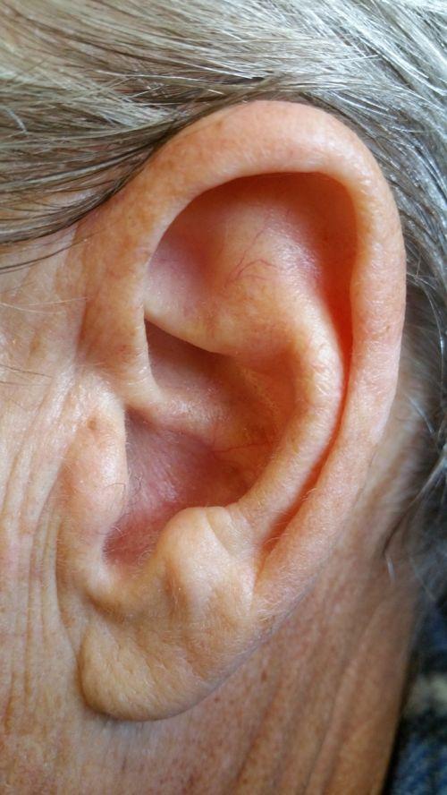 ausis,kūnas,žmogus,galva,Žmogaus kūnas,miręs,oda