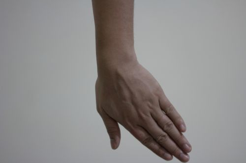 riešas, ranka, pirštai, lenkimas, ulnar & nbsp, nukrypimas, galūnės nuokrypis 2