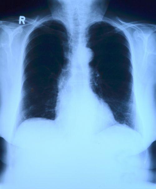 x ray image,x ray,krūtinės angina,plaučių rentgeno spinduliai,medicinos